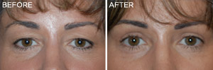 Eyelid Lift: Before & After Photos: Alexander Cosmetic Surgery San Diego, California (CA)