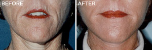 Laser-Skin: Before & After Photos: Alexander Cosmetic Surgery San Diego, California (CA)