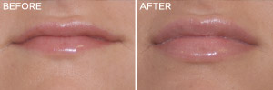 Lip-Enhancement: Before & After Photos: Alexander Cosmetic Surgery San Diego, California (CA)
