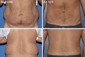 Men's Vaser Liposelect: Before & After Photos: Alexander Cosmetic Surgery San Diego, California (CA)