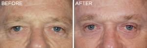 Mens-Eyelift: Before & After Photos: Alexander Cosmetic Surgery San Diego, California (CA)