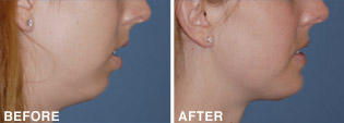 Chin-Reshaping: Before & After Photos: Alexander Cosmetic Surgery San Diego, California (CA)