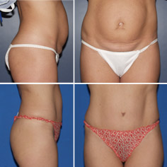 Tummy Tuck: Before & After Photos: Alexander Cosmetic Surgery San Diego, California (CA)