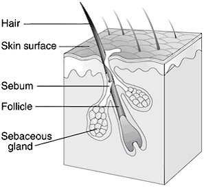 Normal Pilosebaceous Unit