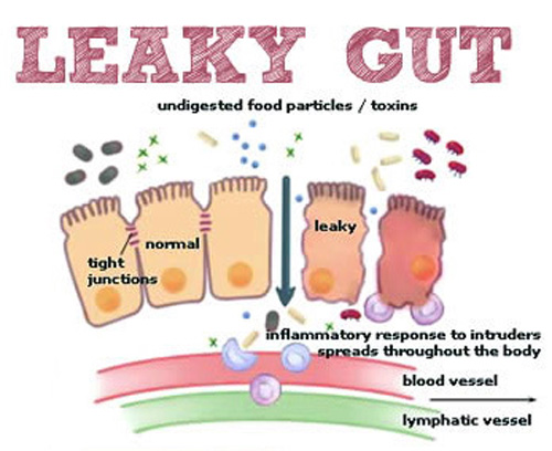 What is leaky gut?