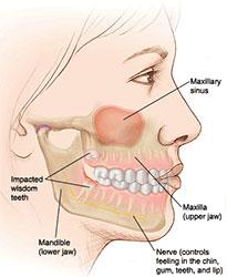 Wisdom teeth pain and symptoms