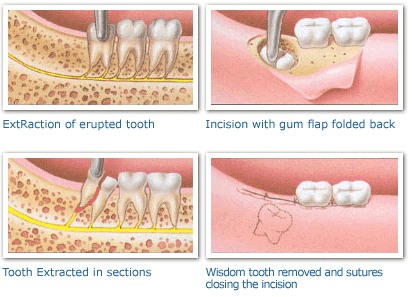 Wisdom Teeth Extraction And Recovery Processes