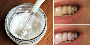 read about 5 Natural Home Remedies to Whiten your Teeth