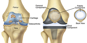 read about All that you need to Know about Knee Replacement Surgery in India