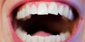 read about A Brief on the Different Types of Dental Implants