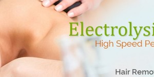 read about Electrolysis Is The Best Permanent Hair Removal Technique