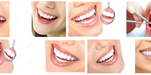 read about Everything You Need To Know About Teeth Implants