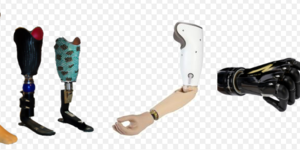 read about Maintaining Your Bionics And Prosthetics