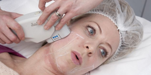 read about Ulthera Body and Facial Skin Tightening Treatment