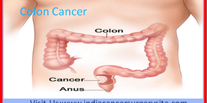 read about Colorectal Cancer Treatment in India