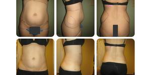 read about 10 Best Benefits of Fat Transfer and Liposuction
