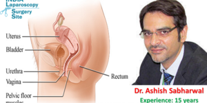 read about Tension-Free Vaginal Tape Procedure by Dr. Ashish Sabharwal