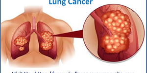 read about Lung Cancer Surgery by Dr. Rajasundaram Top Oncology Surgeon in Chenna
