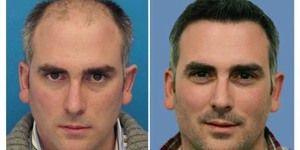 read about Hair Transplant with Expert's Guidance in Jaipur