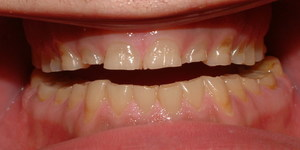 read about Bruxism: Signs and Symptoms