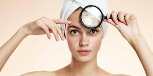 read about Effective Ways of Dealing with Stubborn Acne