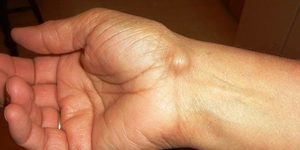 Easy And Simple Ganglion Cyst Home Treatment