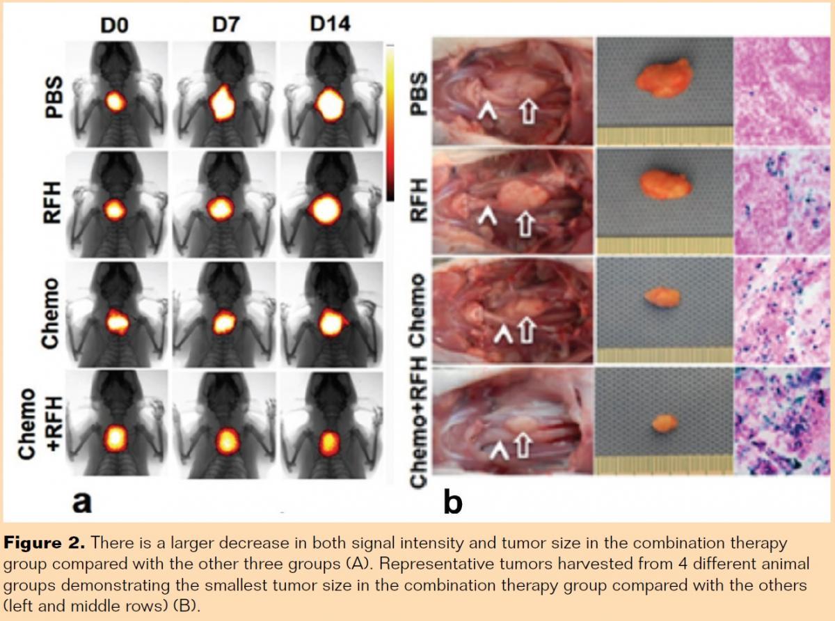 An Oncolytic Adenovirus Enhanced for Toll-like Receptor 9
