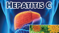 Hepatitis C: Causes, Symptoms, Prevention, Treatment