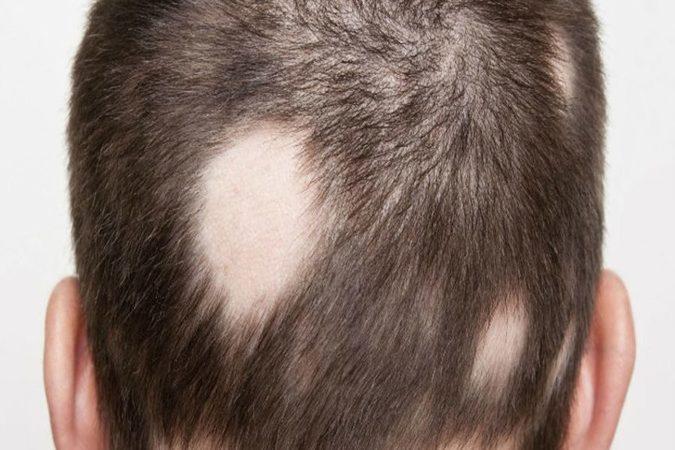 Alopecia 848x450 (1)