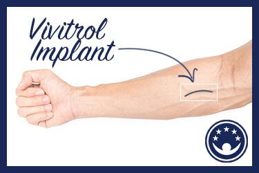 Is the Vivitrol Implant Effective?