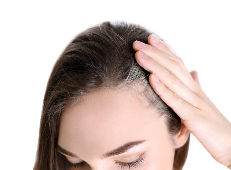 Female Hair Loss at The Temples: Causes and Treatment