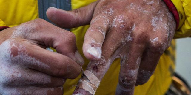 Jorgeson hırpalanmış ellerindeki bantları çıkartıyor.