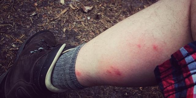 Sivrisinek küçüktür…