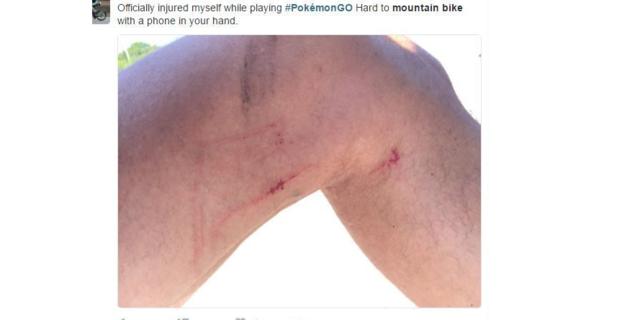 """""""Kendimi dağ bisikleti yapıp aynı anda Pokemon Go oynarken sakatladım. Elde telefon dağ bisikleti yapmak gerçekten zor."""""""