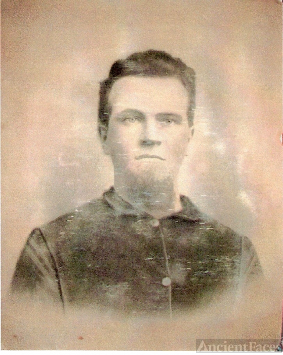 Jesse O Burgess, Union Soilder in the Civil War