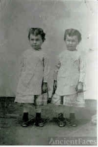 The Guimond Twins, born 1875