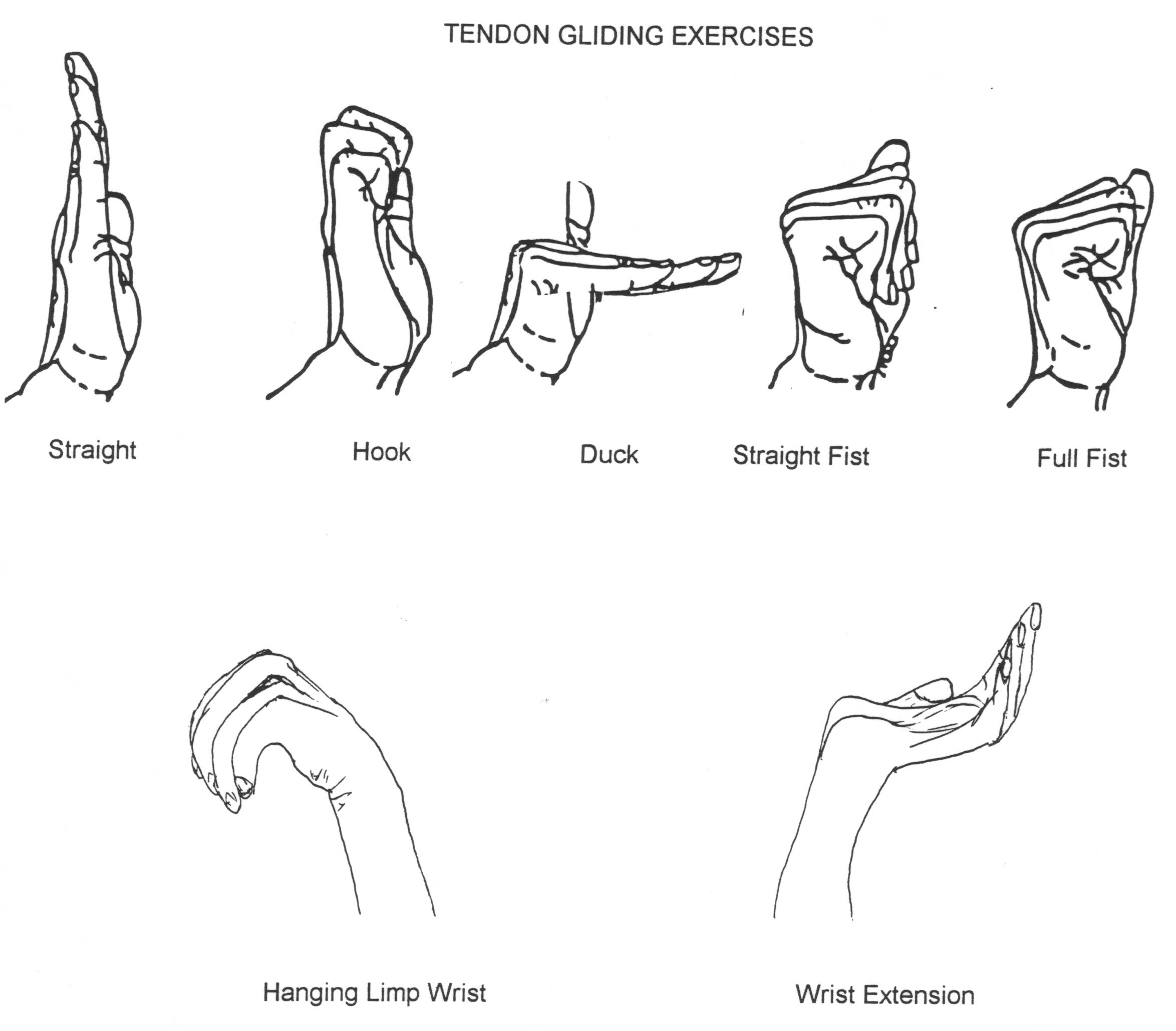 Pin Nerve Glide Exercises Are An Important Part Of A ...