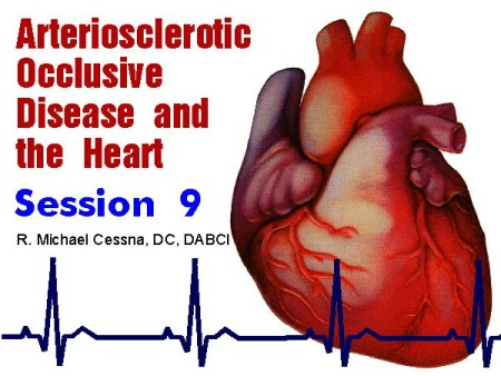 Wellness CE Session 9 Arteriosclerotic Occlusive Disease and the Heart by R. Michael  Cessna, D.C., N.M.D., D.A.B.C.I.