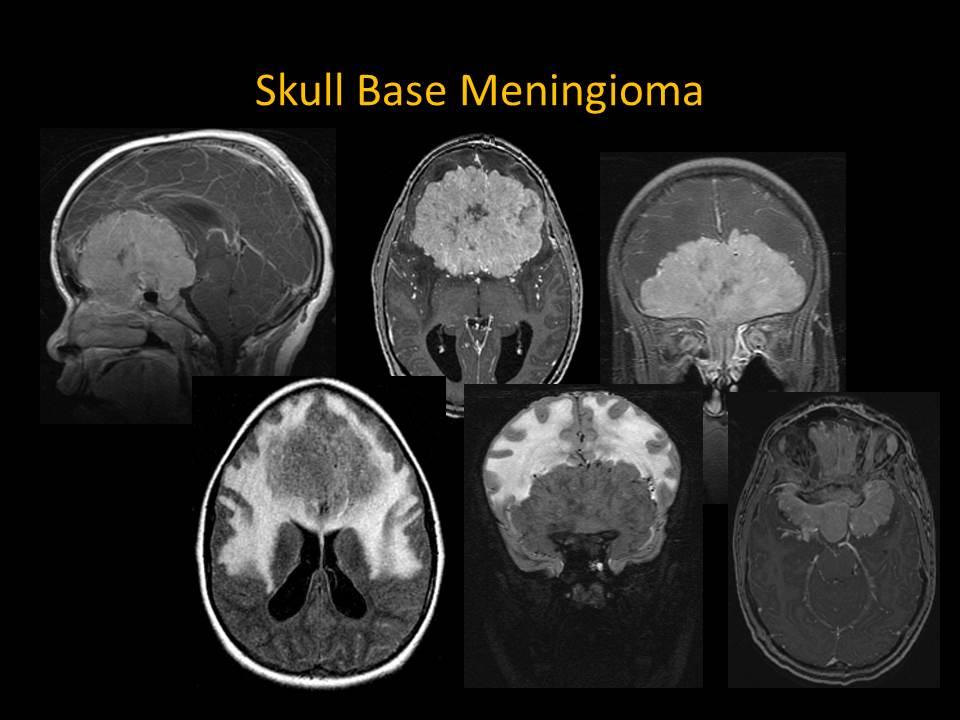 Radiology of Meningioma