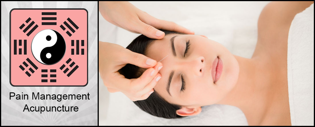 Migraine Acupuncture