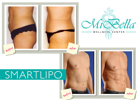 MiBella Wellness Center Deal Image