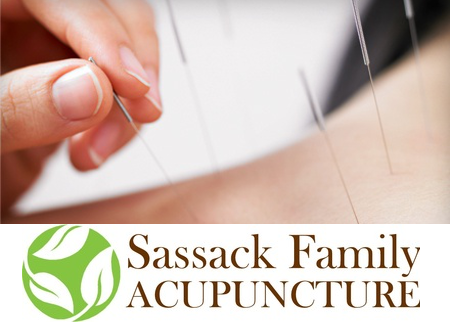 Sassack Acupuncture Deal Image