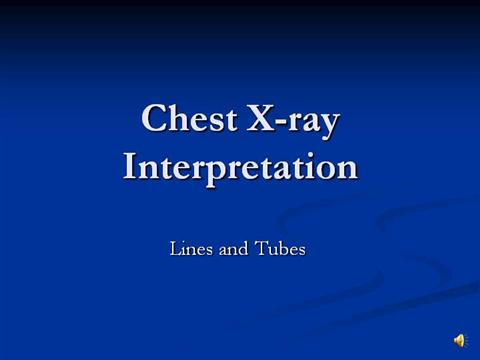 Chest X Ray Interpretation Tubes And Cathaters Nar