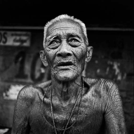 Blind_man_awaiting_cataract_surgery