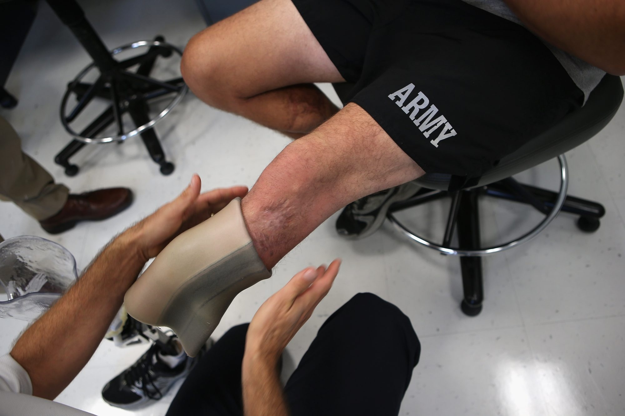 A prosthesis liner is fitted onto the leg of an Army soldier at Brooke Army Medical Center in San Antonio, Texas.