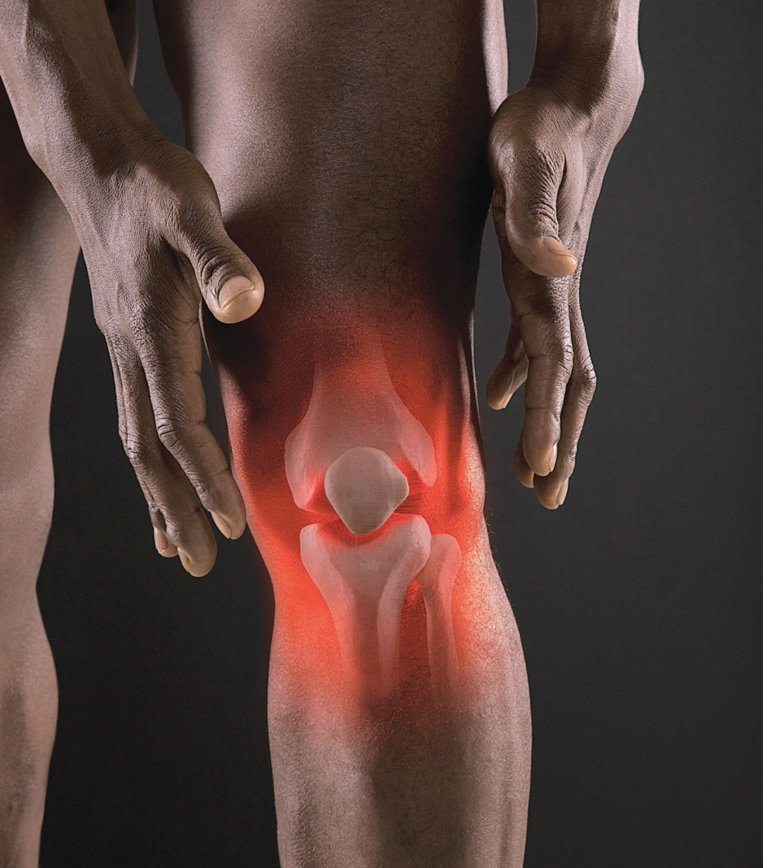 Skip joint supplements, like glucosamine or chondroitin.