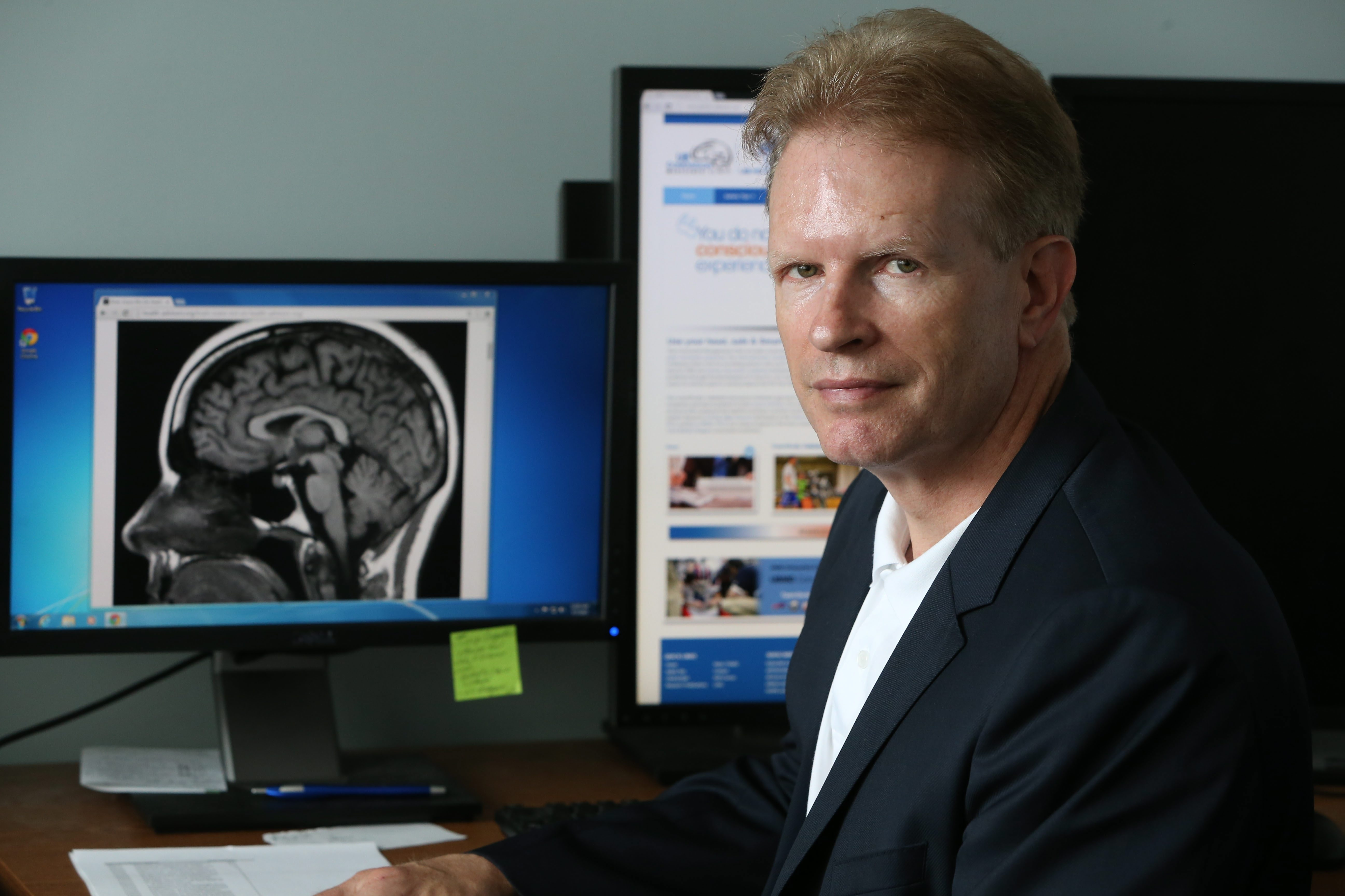 Dr. John Leddy Is a physician with UBMD Orthopaedics and Sports Medecine and Director of UB Concussion Management clinic. Tuesday, July 7, 2015.  (Sharon Cantillon/Buffalo News)