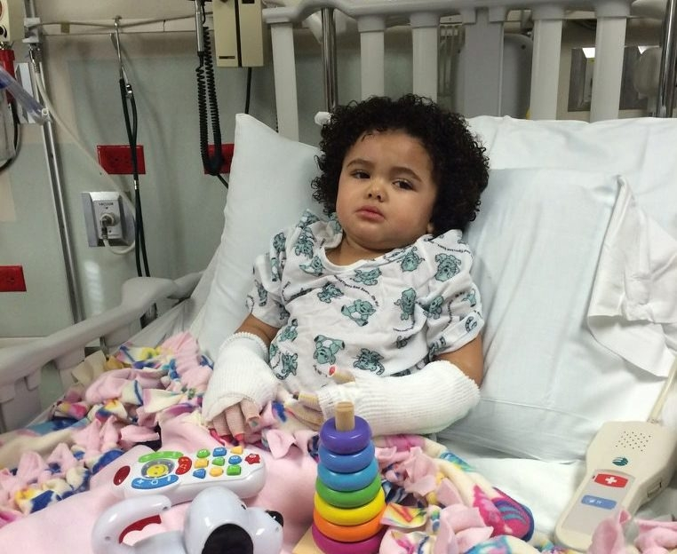 Aubrey Jones suffered second- and third-degree burns on her hands from hot tap water from a bathroom sink.