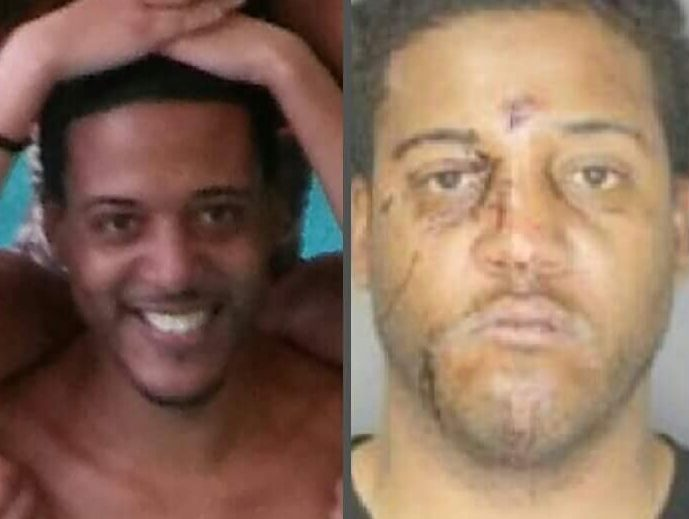 Shaun Porter before and after he suffered serious injuries in a city cellblock.