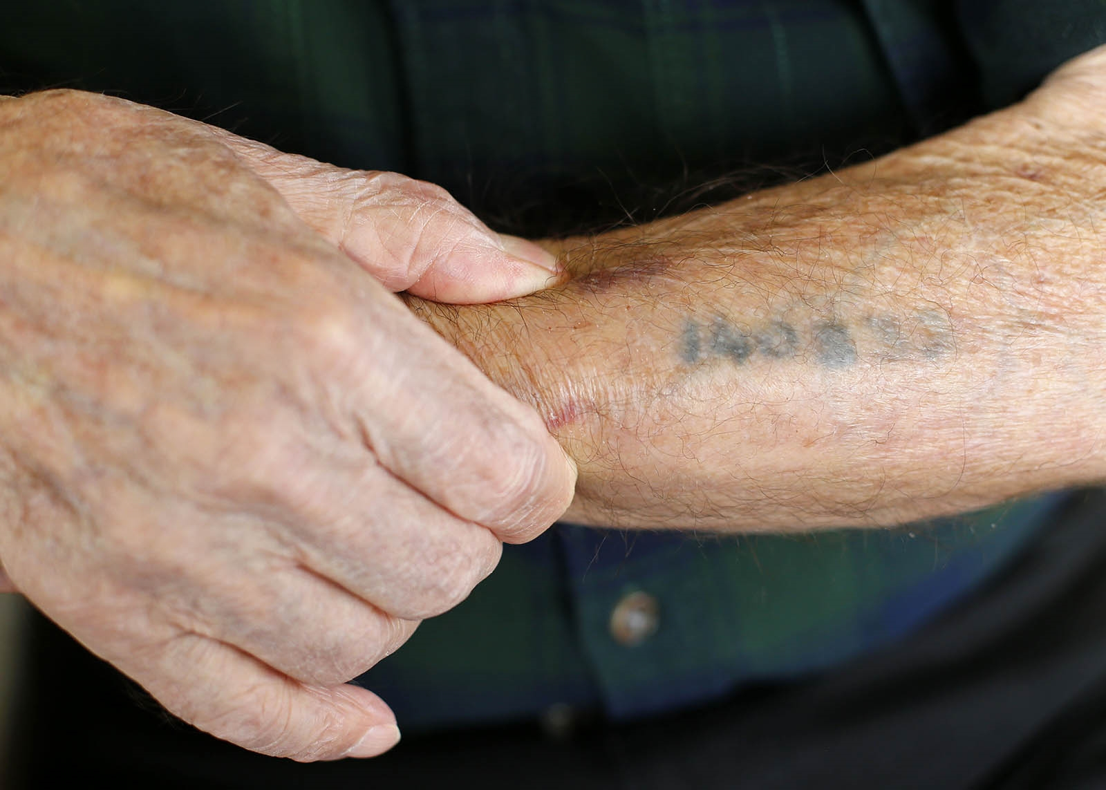 Henry Bawnik survived four concentration camps, including Auschwitz. This tattoo is still a visible reminder. (Mark Mulville/Buffalo News)